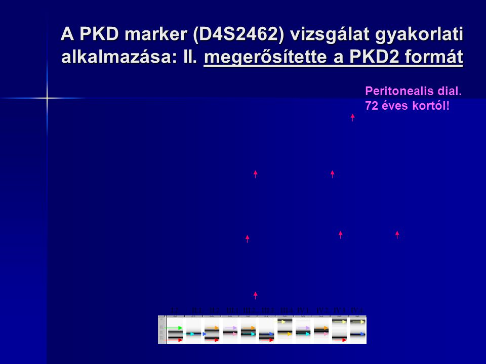 A PKD marker (D4S2462) vizsgálat gyakorlati alkalmazása: II. megerősítette a PKD2 formát I.2. II.1. II.2. III.1. III.2. III.3. III.4. IV.1. IV.2. IV.3