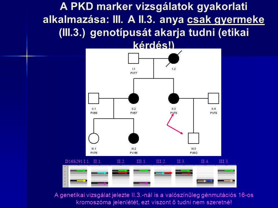 A PKD marker vizsgálatok gyakorlati alkalmazása: III. A II.3. anya csak gyermeke (III.3.) genotípusát akarja tudni (etikai kérdés!) D16S291 I.1. II.1