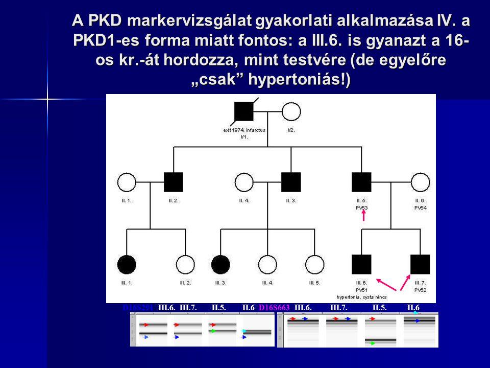 A PKD markervizsgálat gyakorlati alkalmazása IV. a PKD1-es forma miatt fontos: a III.6. is gyanazt a 16- os kr.-át hordozza, mint testvére (de egyelőr