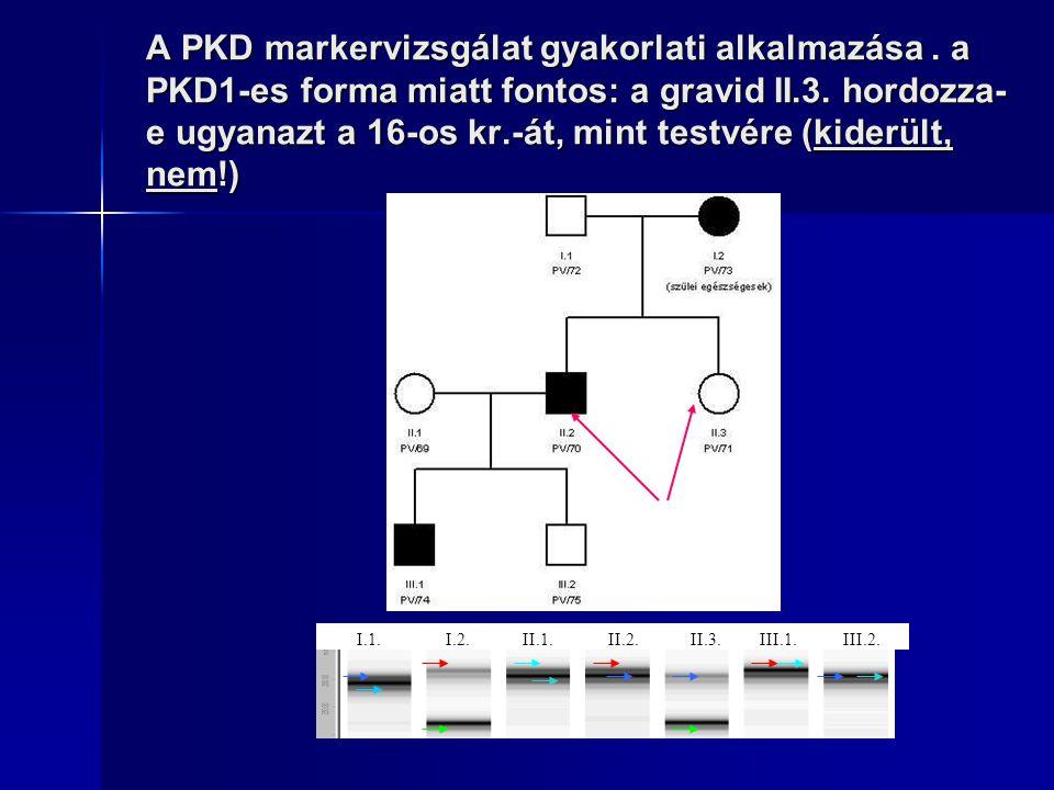 A PKD markervizsgálat gyakorlati alkalmazása. a PKD1-es forma miatt fontos: a gravid II.3. hordozza- e ugyanazt a 16-os kr.-át, mint testvére (kiderül