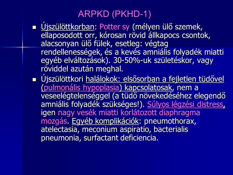 ARPKD (PKHD-1) Újszülöttkorban: Potter sy (mélyen ülő szemek, ellaposodott orr, kórosan rövid állkapocs csontok, alacsonyan ülő fülek, esetleg: végtag