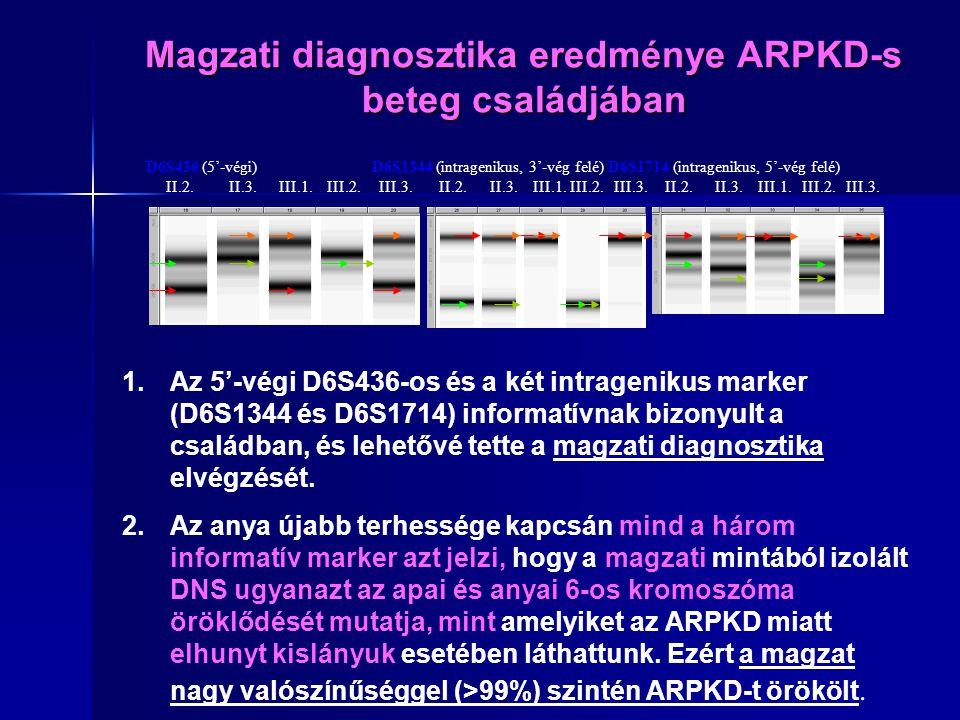 Magzati diagnosztika eredménye ARPKD-s beteg családjában D6S436 (5'-végi) D6S1344 (intragenikus, 3'-vég felé) D6S1714 (intragenikus, 5'-vég felé) II.2