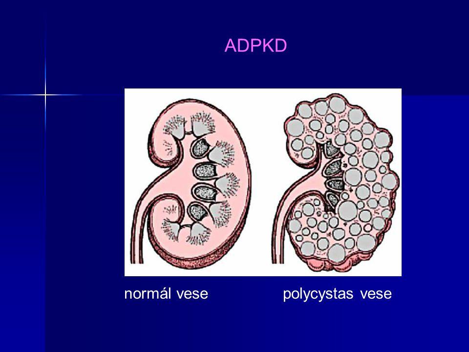 ARPKD (PKHD-1) Újszülöttkorban: Potter sy (mélyen ülő szemek, ellaposodott orr, kórosan rövid állkapocs csontok, alacsonyan ülő fülek, esetleg: végtag rendellenességek, és a kevés amniális folyadék miatti egyéb elváltozások).