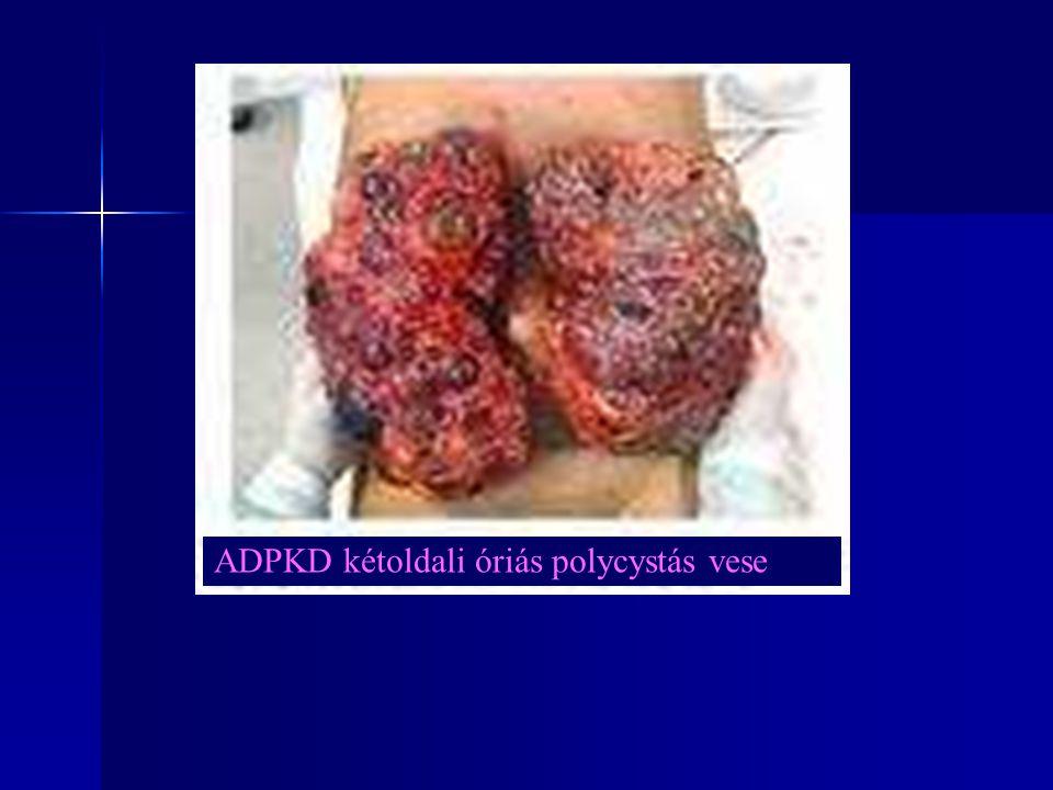 ARPKD (PKHD-1) ARPKD-s veseműködési rendellenességek: Nagy mennyiségű, nem koncentrált vizelet, polyuria, polydipsia.