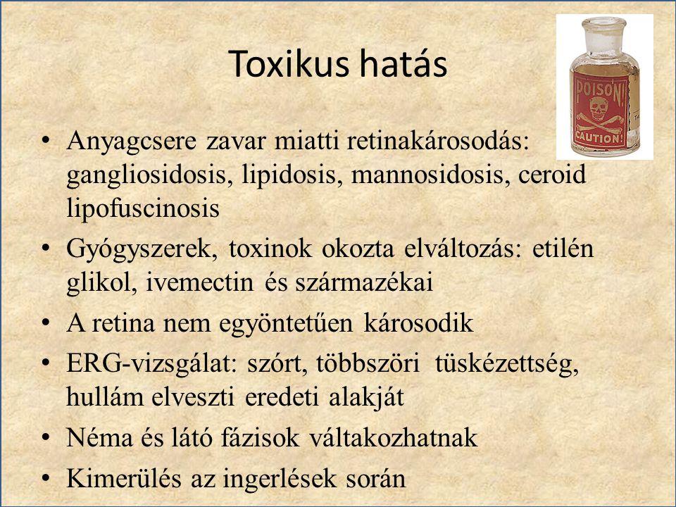 Toxikus hatás Anyagcsere zavar miatti retinakárosodás: gangliosidosis, lipidosis, mannosidosis, ceroid lipofuscinosis Gyógyszerek, toxinok okozta elvá