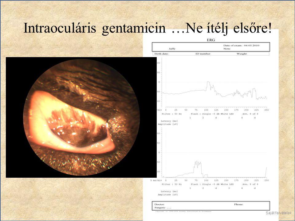 Intraoculáris gentamicin …Ne ítélj elsőre! Saját felvételek