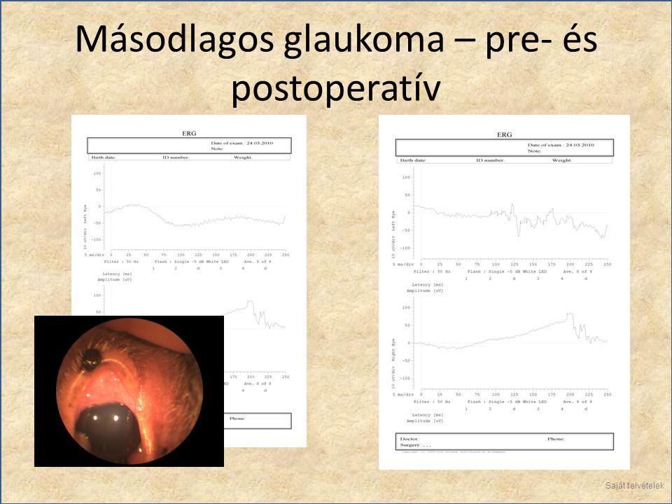 Másodlagos glaukoma – pre- és postoperatív Saját felvételek