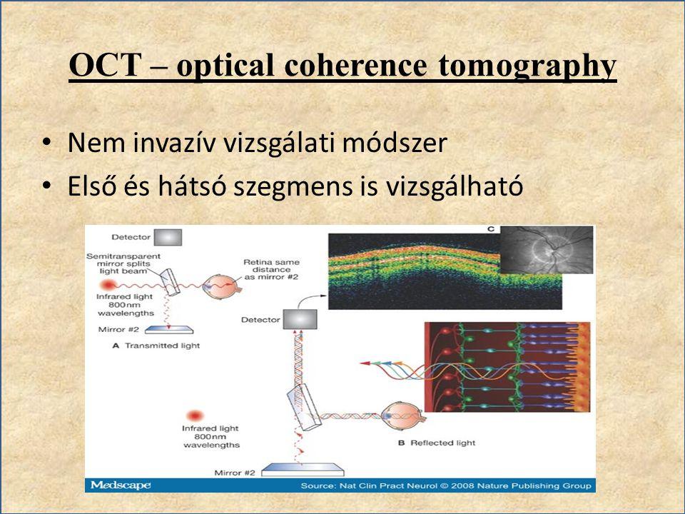 OCT – optical coherence tomography Nem invazív vizsgálati módszer Első és hátsó szegmens is vizsgálható