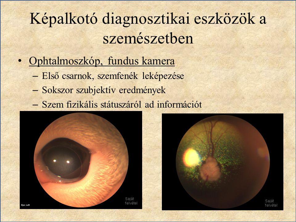 Képalkotó diagnosztikai eszközök a szemészetben Ophtalmoszkóp, fundus kamera – Első csarnok, szemfenék leképezése – Sokszor szubjektív eredmények – Sz