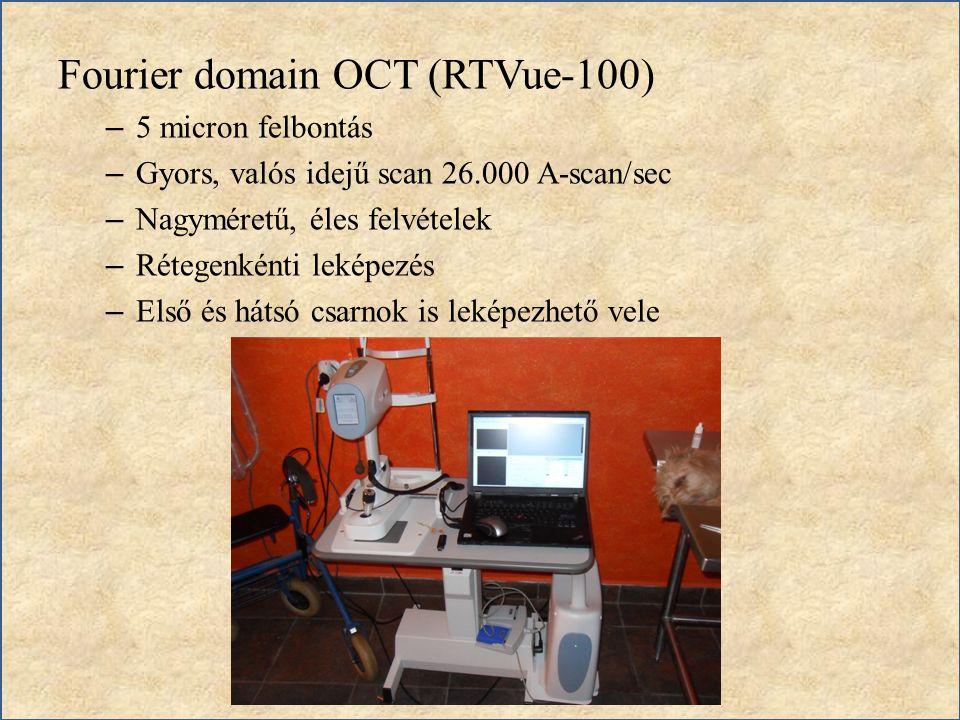 Fourier domain OCT (RTVue-100) – 5 micron felbontás – Gyors, valós idejű scan 26.000 A-scan/sec – Nagyméretű, éles felvételek – Rétegenkénti leképezés