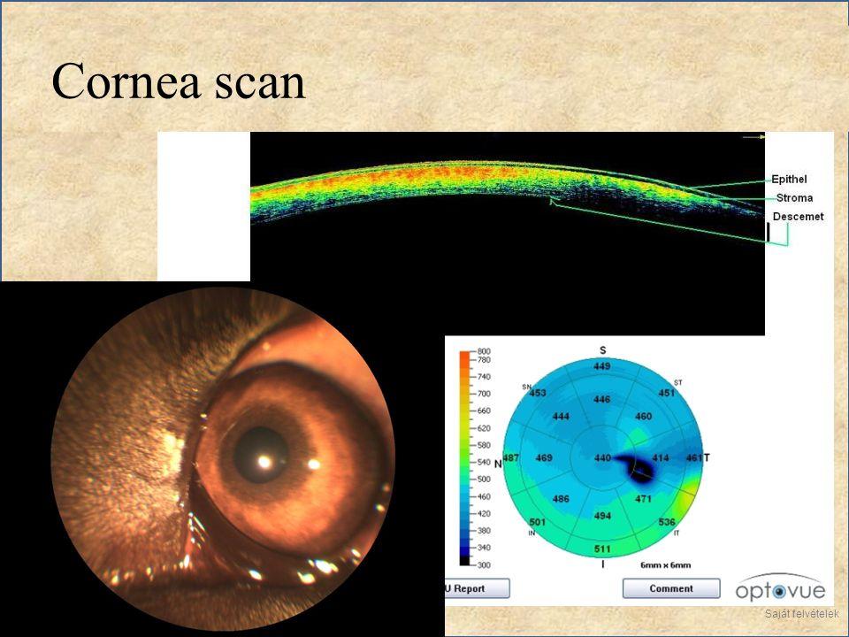 Cornea scan Saját felvételek