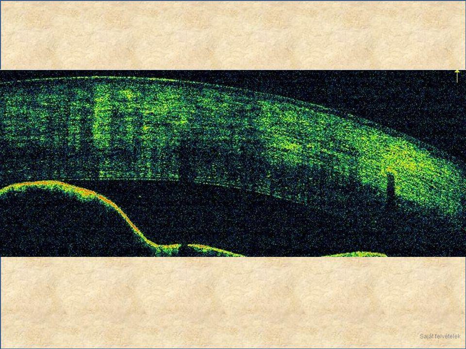 Retina vizsgálata In vivo alkalmas a retina teljes vizsgálatára.