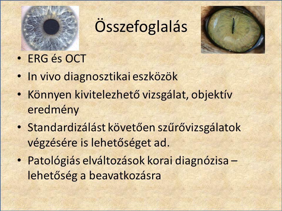 Összefoglalás ERG és OCT In vivo diagnosztikai eszközök Könnyen kivitelezhető vizsgálat, objektív eredmény Standardizálást követően szűrővizsgálatok v