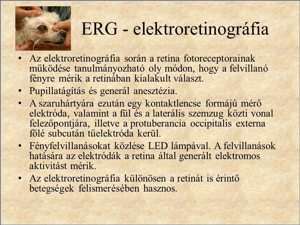 ERG - elektroretinográfia Az elektroretinográfia során a retina fotoreceptorainak működése tanulmányozható oly módon, hogy a felvillanó fényre mérik a
