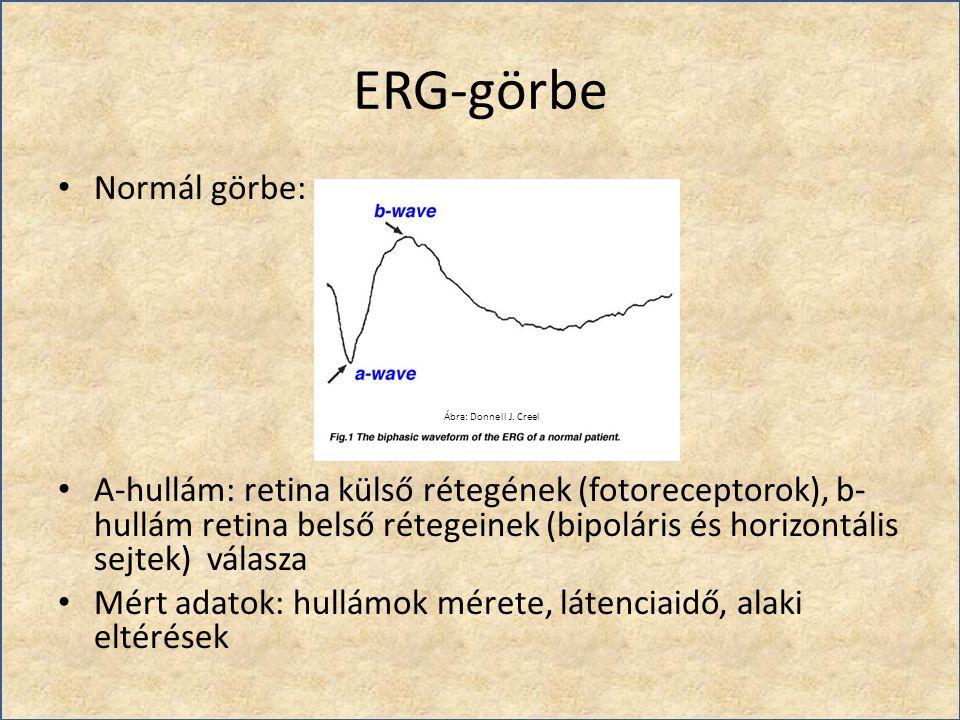 ERG-görbe Normál görbe: A-hullám: retina külső rétegének (fotoreceptorok), b- hullám retina belső rétegeinek (bipoláris és horizontális sejtek) válasz