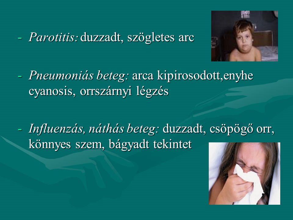 -Kóros sápadtság: - átmeneti: izgalom, ijedtség, hányinger, - tartós: anaemia - tartós: anaemia - Hypothyreosis (myxoedema): - kerek, szárazbőrű, kife