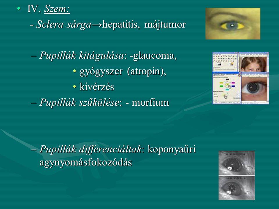-Parotitis : duzzadt, szögletes arc -Pneumoniás beteg: arca kipirosodott,enyhe cyanosis, orrszárnyi légzés -Influenzás, náthás beteg: duzzadt, csöpögő