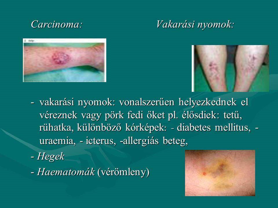 Bőrelváltozások: kialakulhatnak valamilyen betegség vagy külső behatás következtében pl.: kialakulhatnak valamilyen betegség vagy külső behatás követk