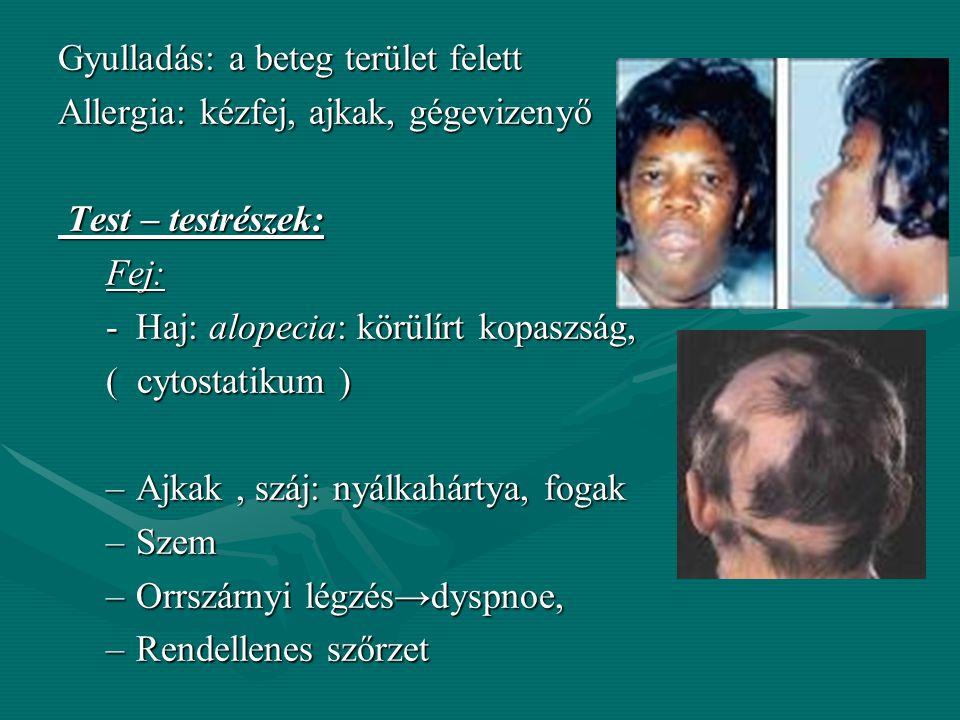 Vizenyő – oedema: Vizenyő – oedema: - a bőr rétegeiben és a bőr alatti kötőszövetekben felhalmozódott folyadék -oedemas terület duzzadt, a bőr fényes,
