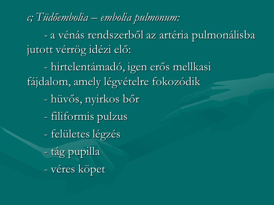 2. Mellkasi fájdalmak: a, angina pectoris: - ischaemia okozza - hirtelen fellépő, heves szorító, markoló, nyomó jellegű fájdalom, amely a bal vállba a