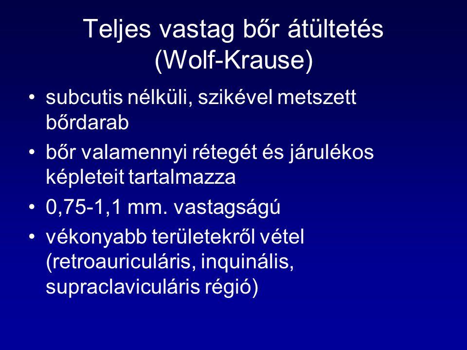 Teljes vastag bőr átültetés (Wolf-Krause) subcutis nélküli, szikével metszett bőrdarab bőr valamennyi rétegét és járulékos képleteit tartalmazza 0,75-