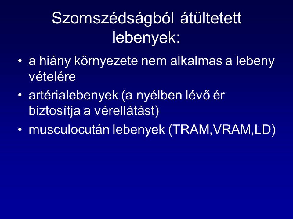 Szomszédságból átültetett lebenyek: a hiány környezete nem alkalmas a lebeny vételére artérialebenyek (a nyélben lévő ér biztosítja a vérellátást) musculocután lebenyek (TRAM,VRAM,LD)