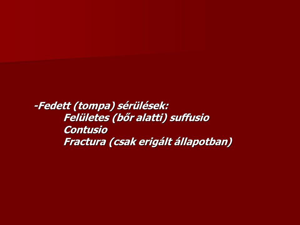 -Fedett (tompa) sérülések: Felületes (bőr alatti) suffusio Contusio Fractura (csak erigált állapotban)