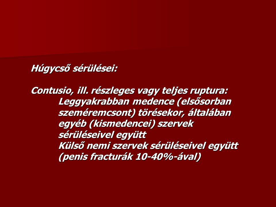 Húgycső sérülései: Contusio, ill. részleges vagy teljes ruptura: Leggyakrabban medence (elsősorban szeméremcsont) törésekor, általában egyéb (kismeden