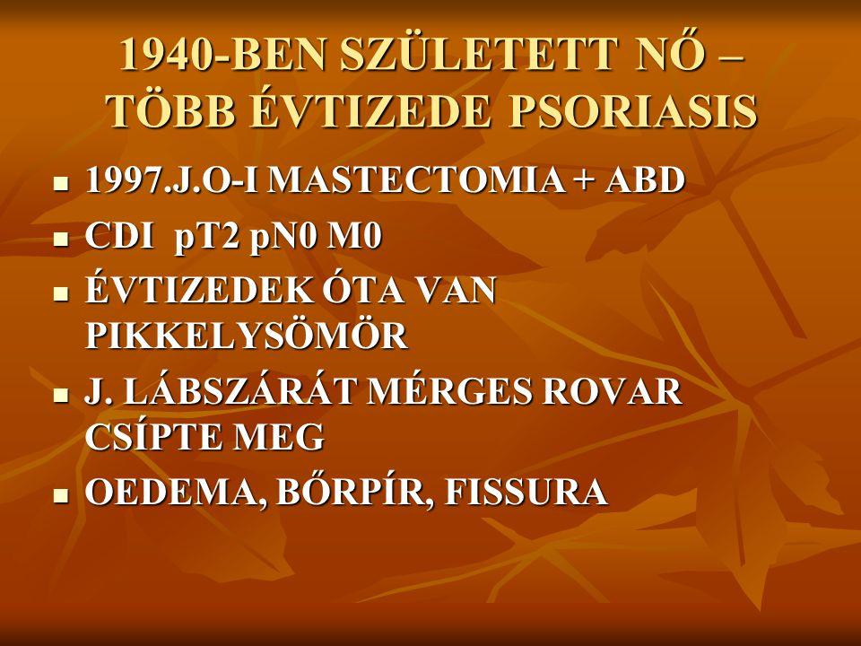 1940-BEN SZÜLETETT NŐ – TÖBB ÉVTIZEDE PSORIASIS 1997.J.O-I MASTECTOMIA + ABD 1997.J.O-I MASTECTOMIA + ABD CDI pT2 pN0 M0 CDI pT2 pN0 M0 ÉVTIZEDEK ÓTA