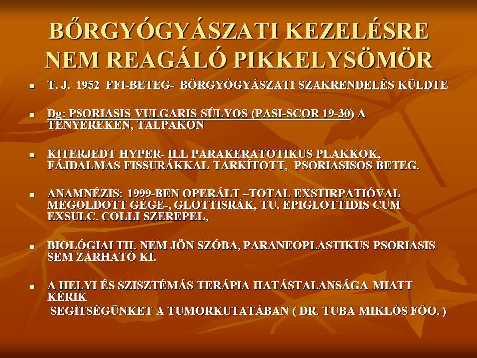 62 ÉVES NŐBETEG 2009.02.-BEN AZ EMLŐDAGANAT MIATT RÉSZLEGES EMLŐELTÁV.