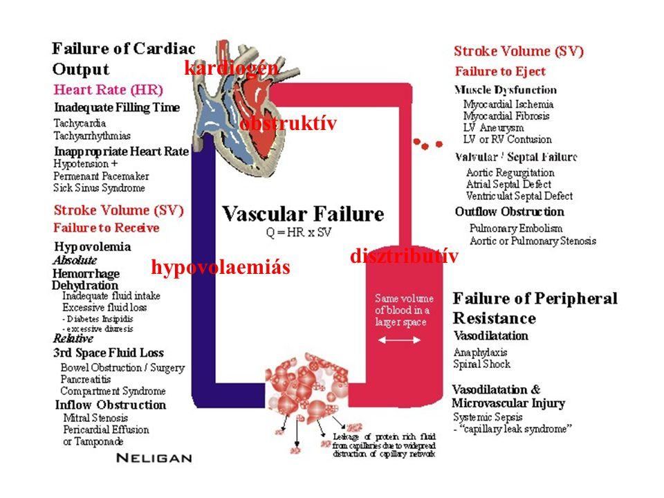 kardiogén obstruktív hypovolaemiás disztributív
