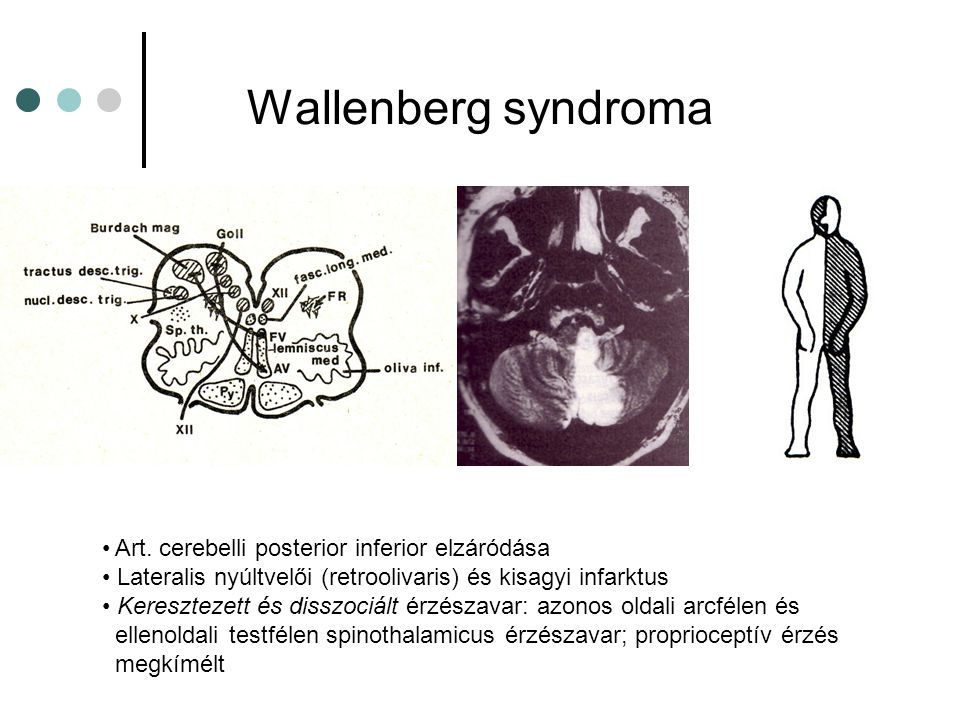 Wallenberg syndroma Art.