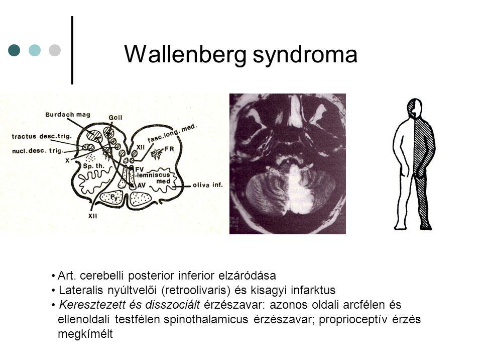 Thalamus és corticalis sensoros syndroma Lateralis thalamus (Dejerine-Roussy sy.): ellenoldali, minden érzéskvalitásra kiterjedő érzészavar; thalamus fájdalom Corticalis sy.: ellenoldali enyhe érzészavar; két-pont diszkrimináció, graphaesthesia, stereoaesthesia zavara, (tactilis agnosia, sensoros extinkció)