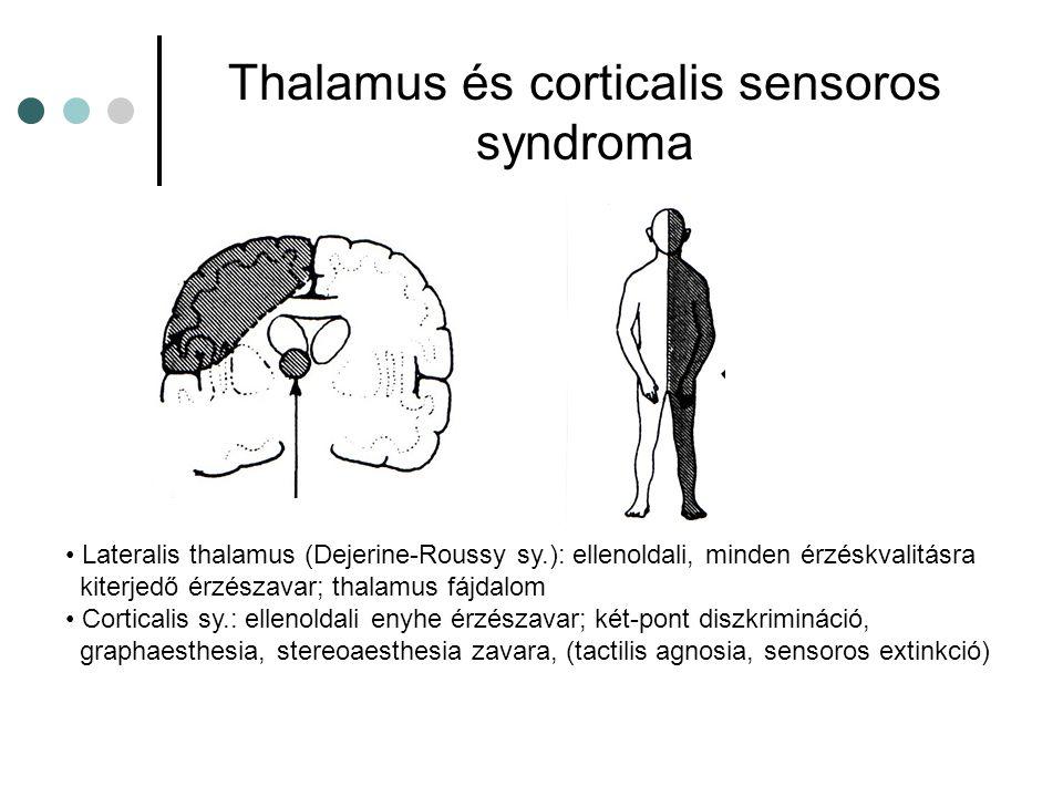 Thalamus és corticalis sensoros syndroma Lateralis thalamus (Dejerine-Roussy sy.): ellenoldali, minden érzéskvalitásra kiterjedő érzészavar; thalamus