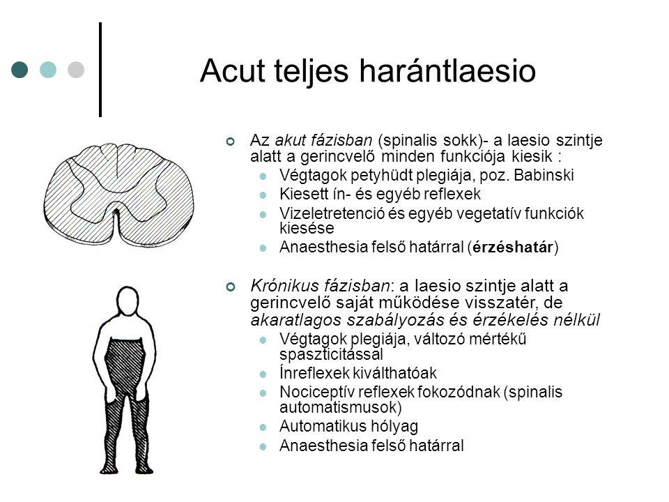 Brown-Séquard syndroma (gerincvelői hemisectio) Tünetek: A károsodott ipsilateralis segmentumban minden funkció kiesik Ipsilateralis gyengeség a laesio szintje alatt, pyramis jelekkel Ipsilateralis proprioceptív érzéskiesés a laesio szintje alatt Contralateralis spinothalamicus érzés- kiesés a laesio szintje alatt