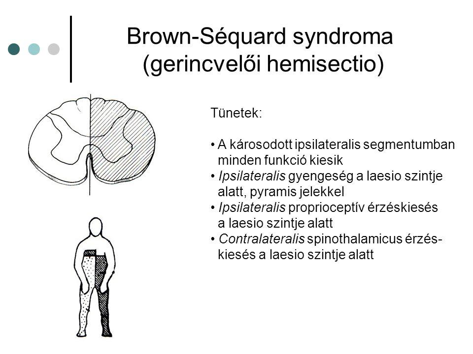 Brown-Séquard syndroma (gerincvelői hemisectio) Tünetek: A károsodott ipsilateralis segmentumban minden funkció kiesik Ipsilateralis gyengeség a laesi