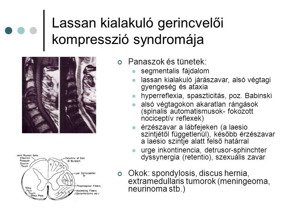 Centralis, intramedullaris laesio syndromája Panaszok és tünetek: Kereszteződő spinothalamicus rostok károsodnak először → csökkent felületes tapintás, fájdalom és hőérzékelés mindkét kezen (disszociált érzés- zavar) Később: alpha motoneuron károsodás ugyanazon segmentumokban → gyengeség és izomatrophia a kezeken Később: leszálló és felszálló pályák károsodása (gyengeség és érzészavar a lábakon) Okok: syringomyelia, intramedullaris tumorok