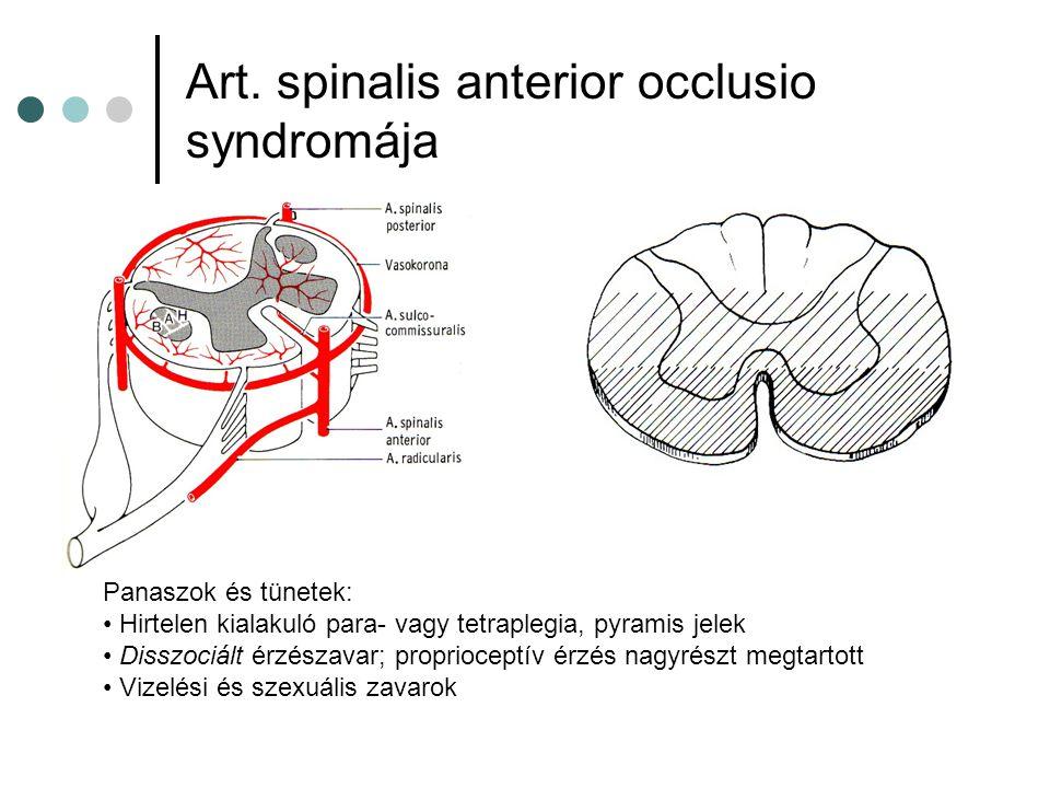 Art. spinalis anterior occlusio syndromája Panaszok és tünetek: Hirtelen kialakuló para- vagy tetraplegia, pyramis jelek Disszociált érzészavar; propr