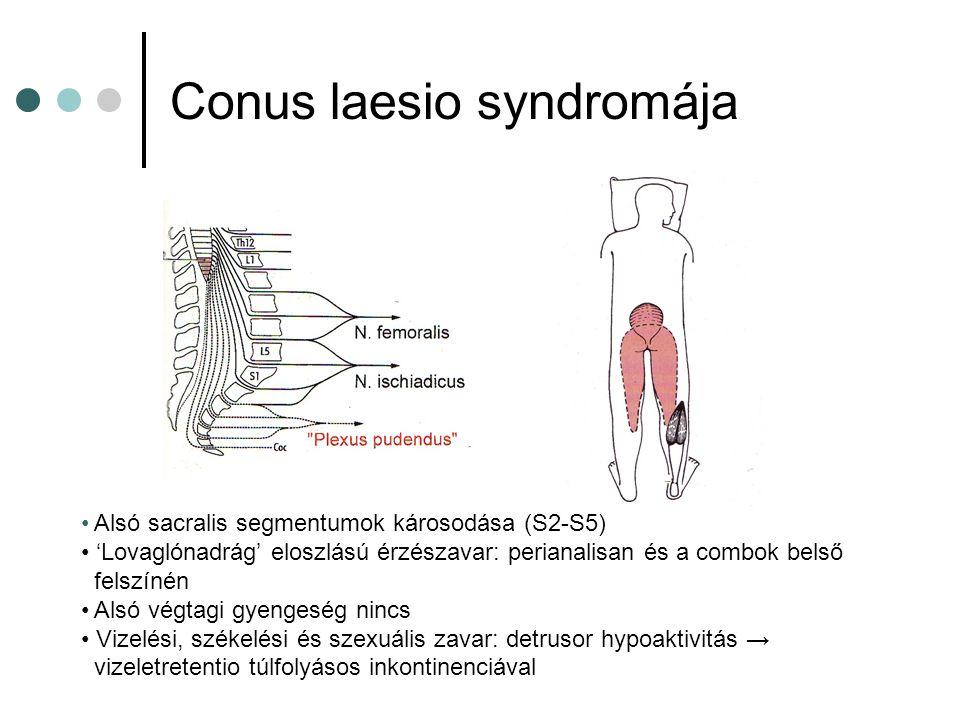 Conus laesio syndromája Alsó sacralis segmentumok károsodása (S2-S5) 'Lovaglónadrág' eloszlású érzészavar: perianalisan és a combok belső felszínén Al