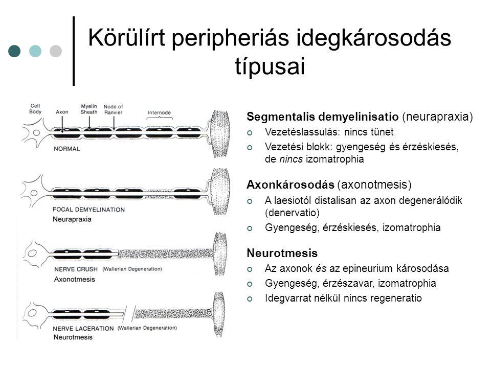 Körülírt peripheriás idegkárosodás típusai Segmentalis demyelinisatio (neurapraxia) Vezetéslassulás: nincs tünet Vezetési blokk: gyengeség és érzéskie