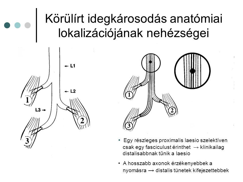 Körülírt idegkárosodás anatómiai lokalizációjának nehézségei Egy részleges proximalis laesio szelektíven csak egy fasciculust érinthet → klinikailag d