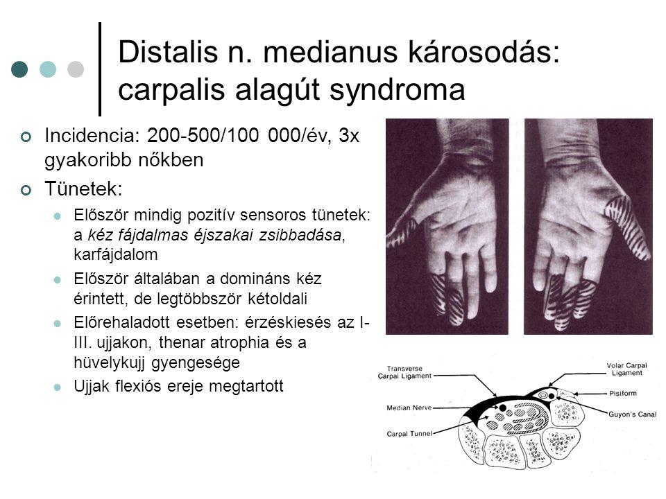 Distalis n. medianus károsodás: carpalis alagút syndroma Incidencia: 200-500/100 000/év, 3x gyakoribb nőkben Tünetek: Először mindig pozitív sensoros