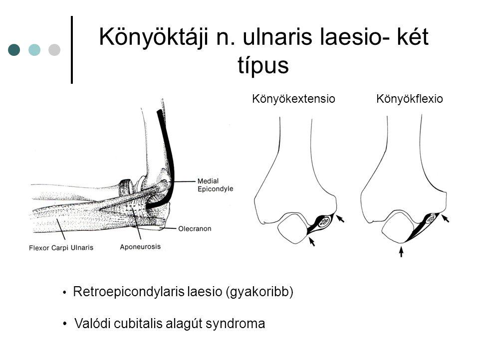 Könyöktáji n. ulnaris laesio- két típus Retroepicondylaris laesio (gyakoribb) Valódi cubitalis alagút syndroma KönyökextensioKönyökflexio