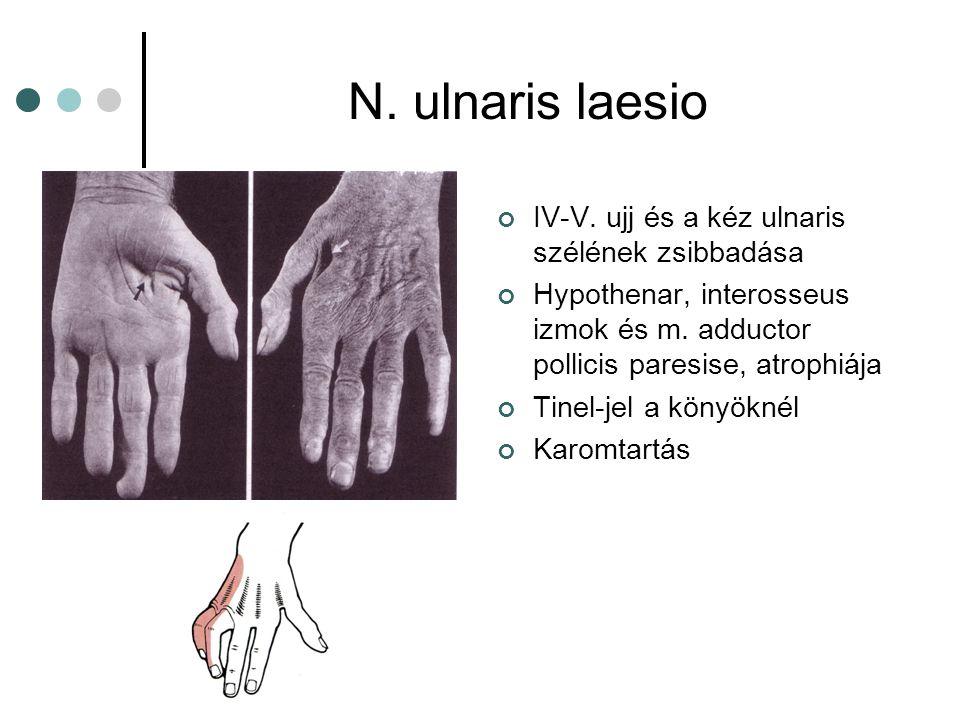 N. ulnaris laesio IV-V. ujj és a kéz ulnaris szélének zsibbadása Hypothenar, interosseus izmok és m. adductor pollicis paresise, atrophiája Tinel-jel