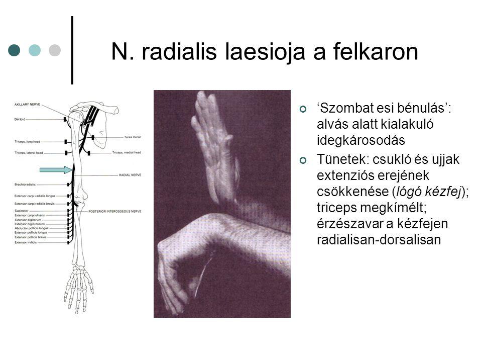 N. radialis laesioja a felkaron 'Szombat esi bénulás': alvás alatt kialakuló idegkárosodás Tünetek: csukló és ujjak extenziós erejének csökkenése (lóg
