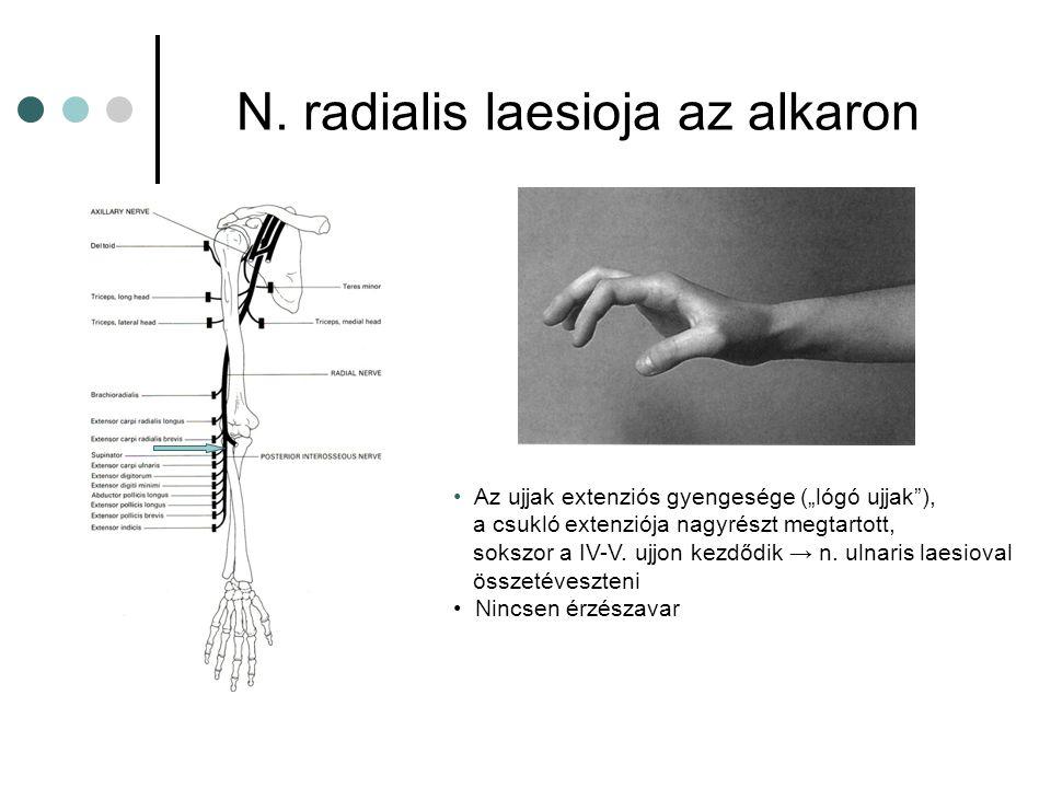 """N. radialis laesioja az alkaron Az ujjak extenziós gyengesége (""""lógó ujjak""""), a csukló extenziója nagyrészt megtartott, sokszor a IV-V. ujjon kezdődik"""