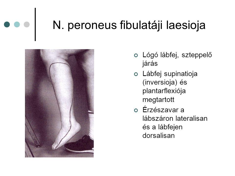 N. peroneus fibulatáji laesioja Lógó lábfej, szteppelő járás Lábfej supinatioja (inversioja) és plantarflexiója megtartott Érzészavar a lábszáron late