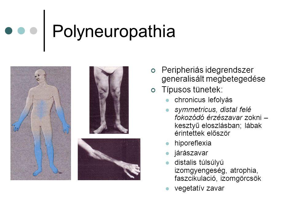 Polyneuropathia Peripheriás idegrendszer generalisált megbetegedése Típusos tünetek: chronicus lefolyás symmetricus, distal felé fokozódó érzészavar z