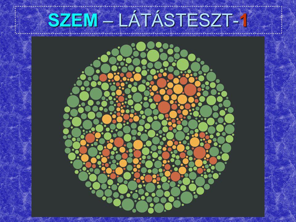 SZEM – LÁTÁSTESZT-1