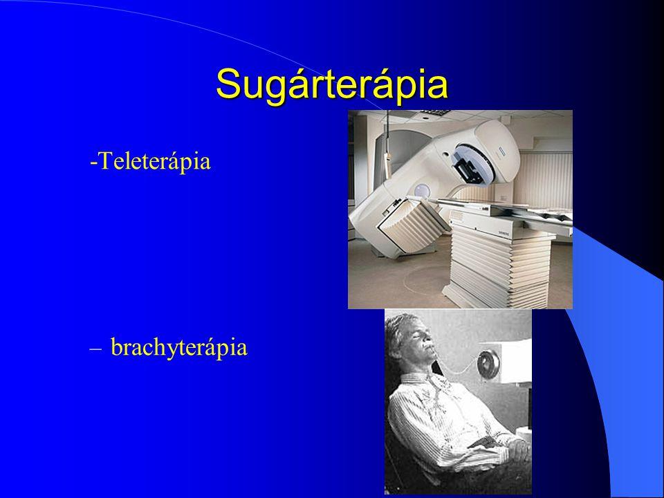 Sugárterápia -Teleterápia – brachyterápia